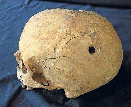Medieval skulls discovered in Spain