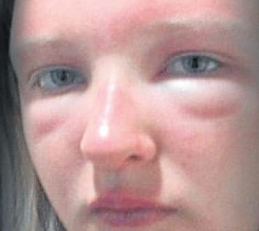 British schoolgirl faces sunglasses horror during holiday in Spain