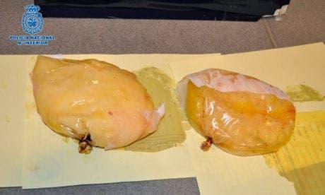 Cocaine hidden in woman's breast implants