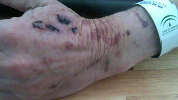 Elderly ex-pat attacked in own home