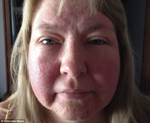 Woman on holiday to Spain suffers terrible reaction to sun cream