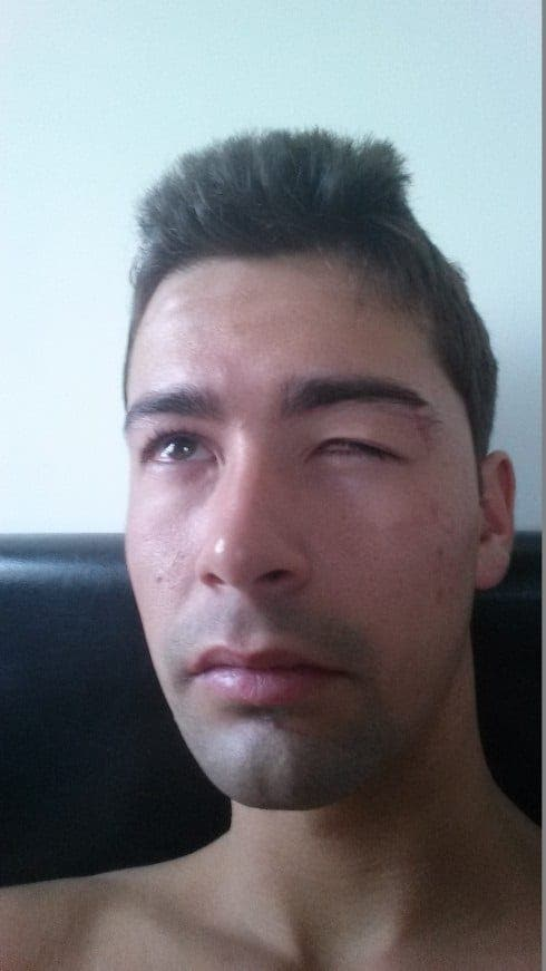 Blinded Brit gets his day in court – NINE months after he was assaulted