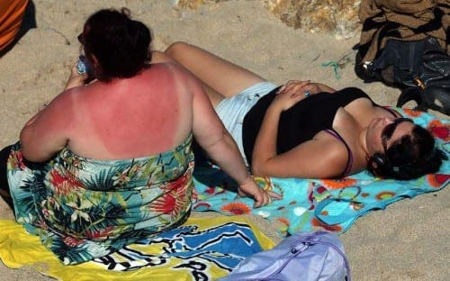Package holidays blamed for massive rise in skin cancer