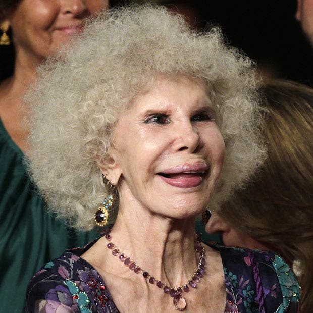 Duchess of Alba recovering in hospital after pneumonia emergency