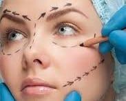 Cosmetic surgery e