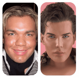 Marbella surgery addict insures his 'Barbie's Ken' body for €1 1