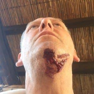 Paul was bitten on his neck