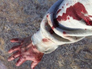 Paul's arm after the attack, with clear bite holes in his hand