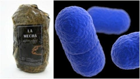 Listeria outbreak infects 80 people including 15 pregnant women in Spain's Andalucia after bacteria found in 2,000 packs of popular meat