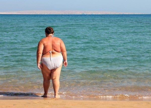Obesity Spain