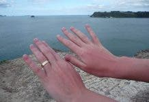 800px Sunburn_on_hands_after_a_day_at_hot_water_beach _new_zealand 12dec2008