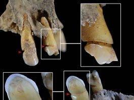Spain Tooth Wear