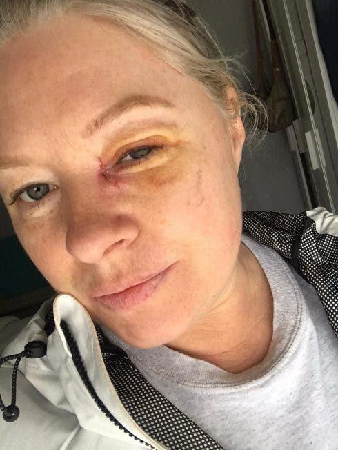 Joanne Stapleton Recovering
